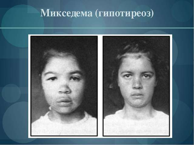 Микседема (гипотиреоз)