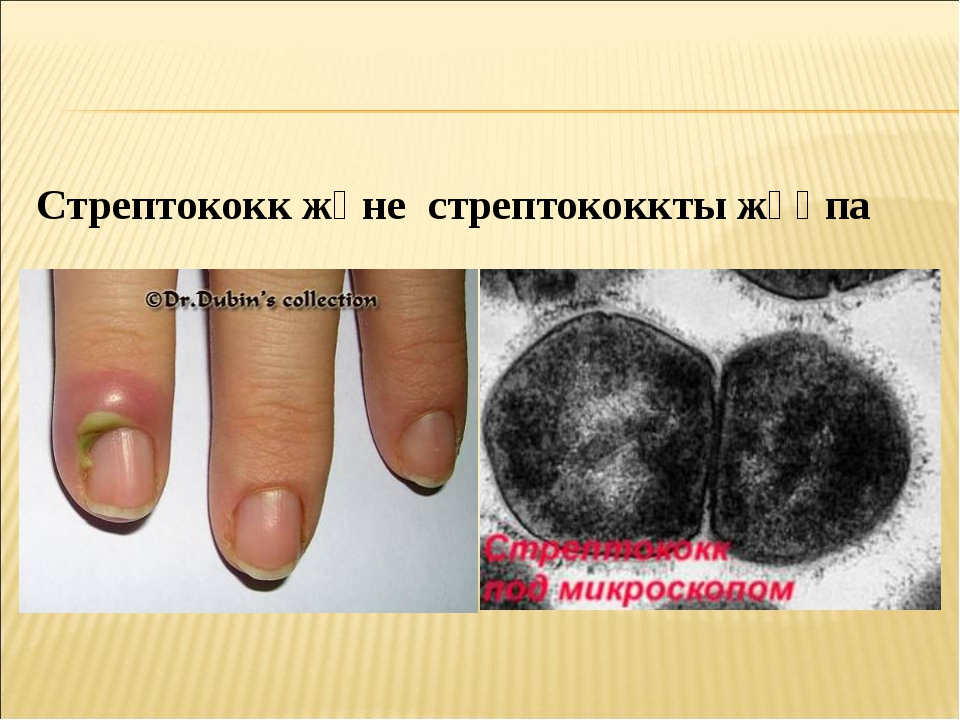 Стрептококк және стрептококкты жұқпа