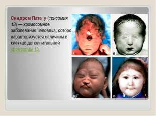 Синдром Пата́у (трисомия 13)— хромосомное заболевание человека, которое хара