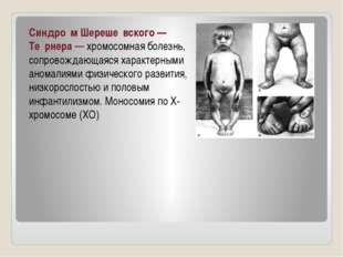 Синдро́м Шереше́вского— Те́рнера— хромосомная болезнь, сопровождающаяся хар