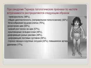 При синдроме Тернера патологические признаки по частоте встречаемости распред