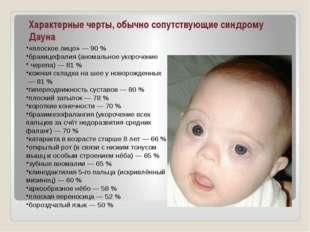 Характерные черты, обычно сопутствующие синдрому Дауна «плоское лицо»— 90%