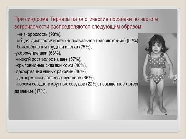 При синдроме Тернера патологические признаки по частоте встречаемости распред...