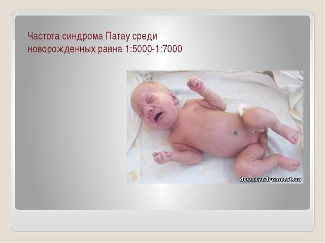 Частота синдрома Патау среди новорожденных равна 1:5000-1:7000