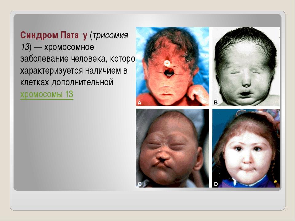 Синдром Пата́у (трисомия 13)— хромосомное заболевание человека, которое хара...