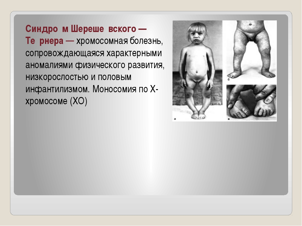Синдро́м Шереше́вского— Те́рнера— хромосомная болезнь, сопровождающаяся хар...