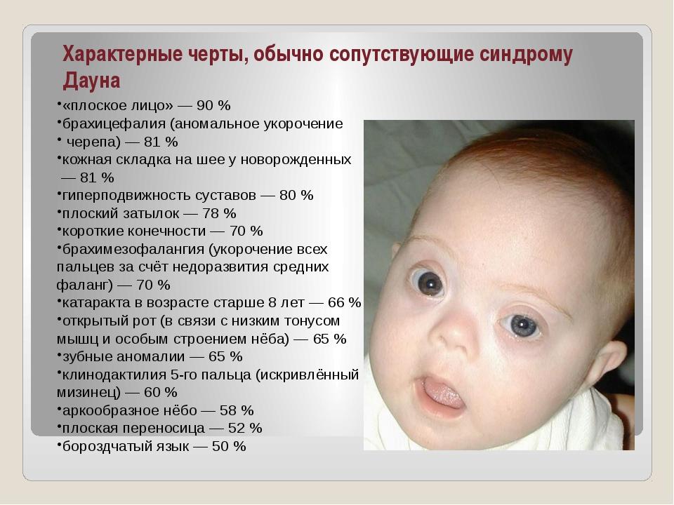 Характерные черты, обычно сопутствующие синдрому Дауна «плоское лицо»— 90%...