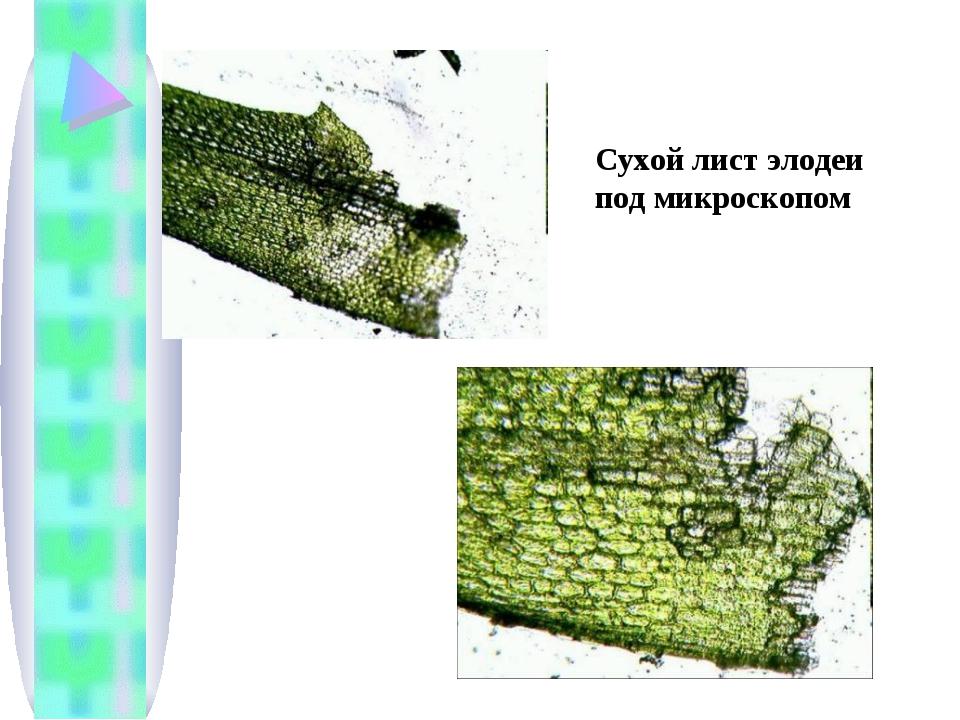 Сухой лист элодеи под микроскопом