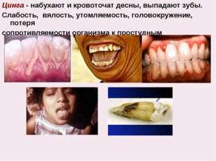 Цинга - набухают и кровоточат десны, выпадают зубы. Слабость, вялость, утомля