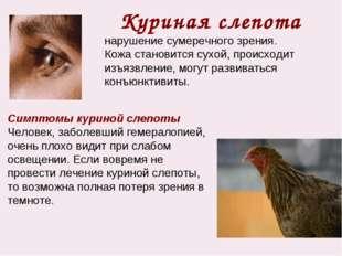 Куриная слепота нарушение сумеречного зрения. Кожа становится сухой, происход