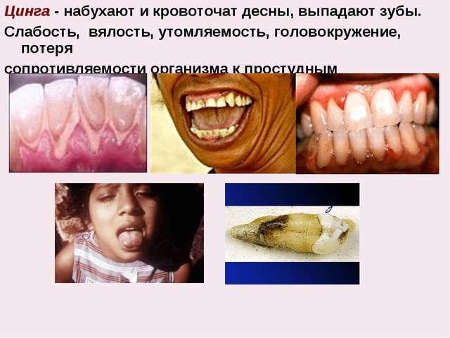 Цинга - набухают и кровоточат десны, выпадают зубы. Слабость, вялость, утомля...