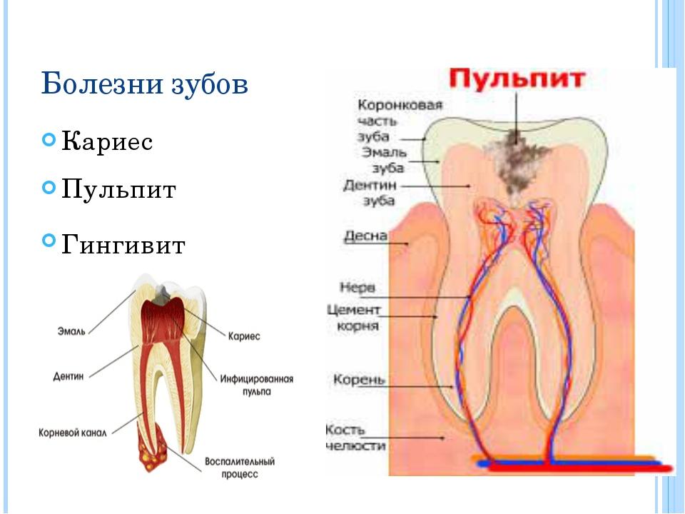 Болезни зубов Кариес Пульпит Гингивит