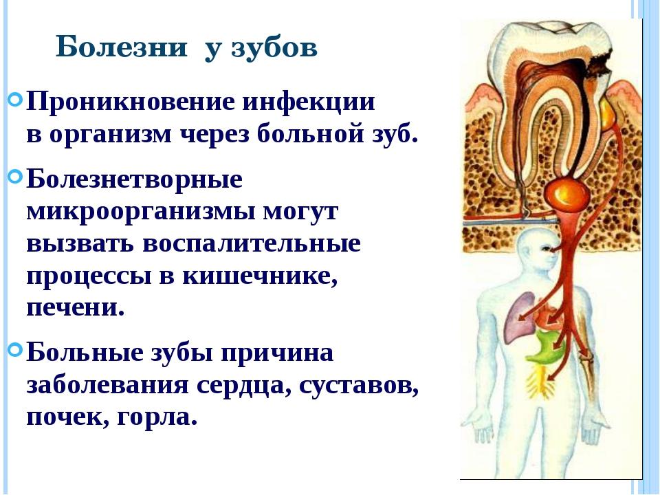 Проникновение инфекции в организм через больной зуб. Болезнетворные микроорга...