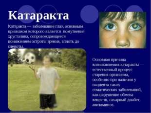 Катаракта Катаракта — заболевание глаз, основным признаком которого является