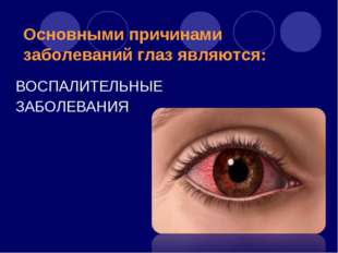 Основными причинами заболеваний глаз являются: ВОСПАЛИТЕЛЬНЫЕ ЗАБОЛЕВАНИЯ