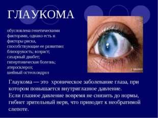 ГЛАУКОМА Глаукома — это хроническое заболевание глаза, при котором повышается
