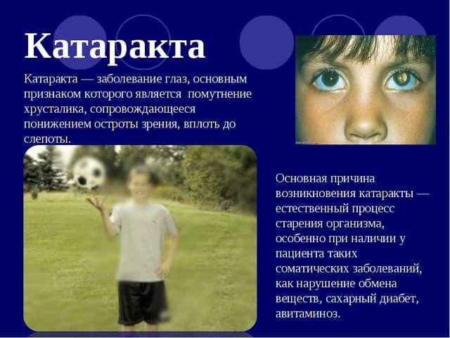Катаракта Катаракта — заболевание глаз, основным признаком которого является...