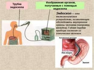 Эндоскоп — это телескопическое устройство, позволяющее обследовать внутренние