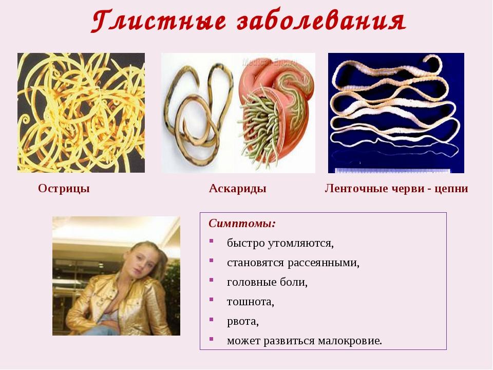 Глистные заболевания Острицы Ленточные черви - цепни Аскариды Симптомы: быст...