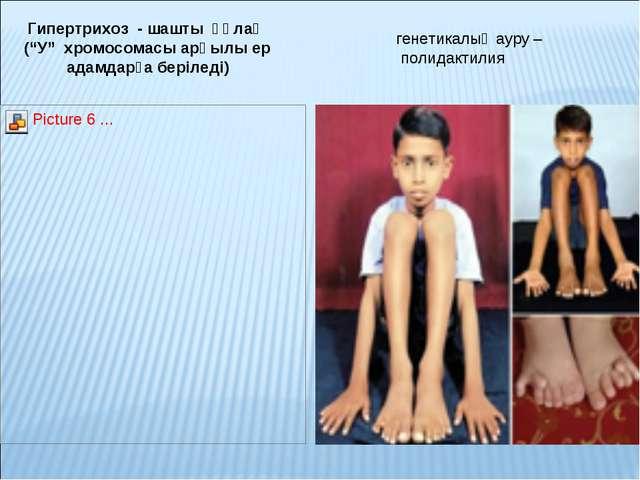"""Гипертрихоз - шашты құлақ (""""У"""" хромосомасы арқылы ер адамдарға беріледі) гене..."""