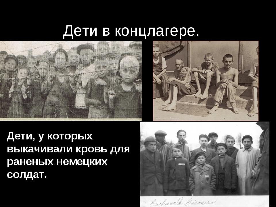 Дети в концлагере. Дети, у которых выкачивали кровь для раненых немецких солд...