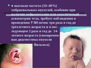 ●высокая частота (10–40%) эмбриональных опухолей, особенно при наличии нефро