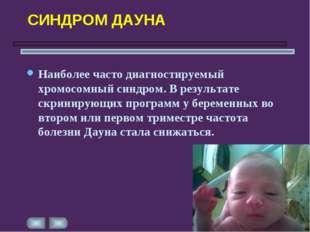 СИНДРОМ ДАУНА Наиболее часто диагностируемый хромосомный синдром. В результат