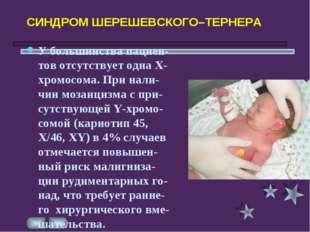 СИНДРОМ ШЕРЕШЕВСКОГО–ТЕРНЕРА У большинства пациен-тов отсутствует одна Х-хро