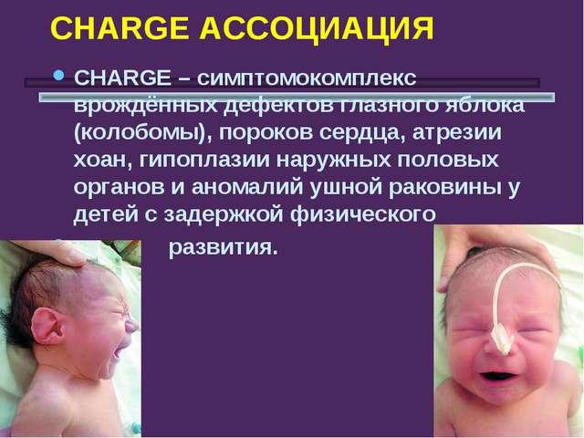 CHARGE АССОЦИАЦИЯ СHARGE – симптомокомплекс врождённых дефектов глазного ябло...