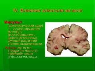 IV. Влияние алкоголя на мозг. Инсульт (апоплексический удар) — острое нарушен