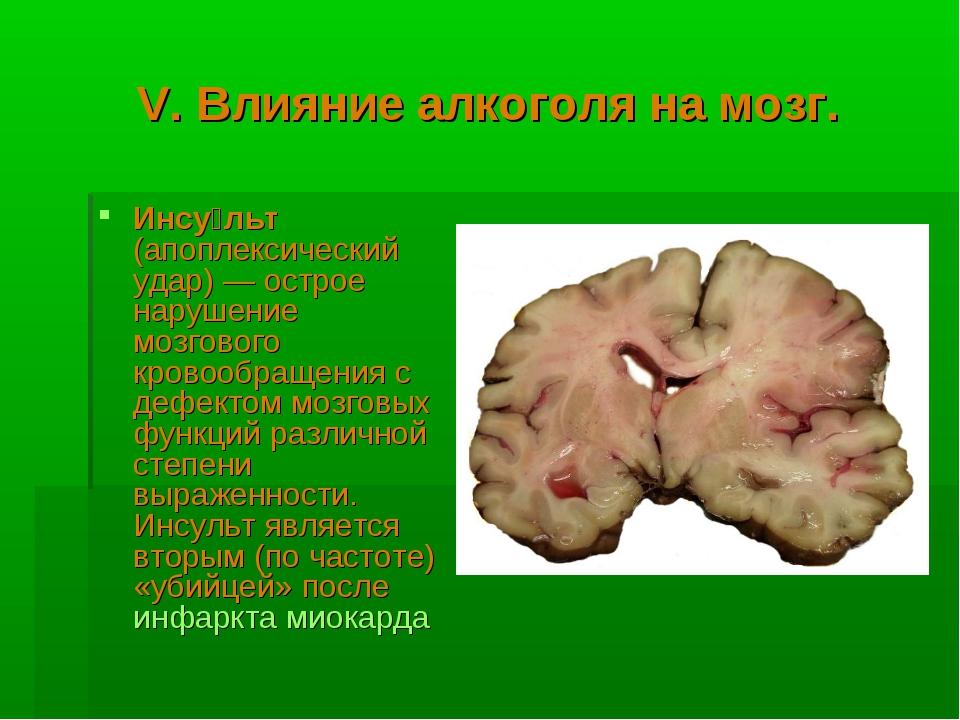 V. Влияние алкоголя на мозг. Инсу́льт (апоплексический удар) — острое нарушен...