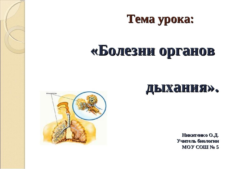 Тема урока: «Болезни органов дыхания». Никитенко О.Д. Учитель биологии МОУ С...