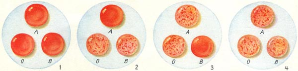 определение групп крови