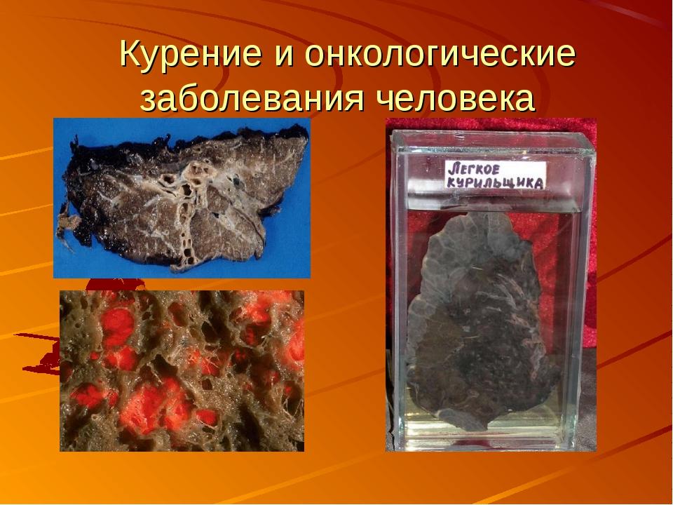 Курение и онкологические заболевания человека
