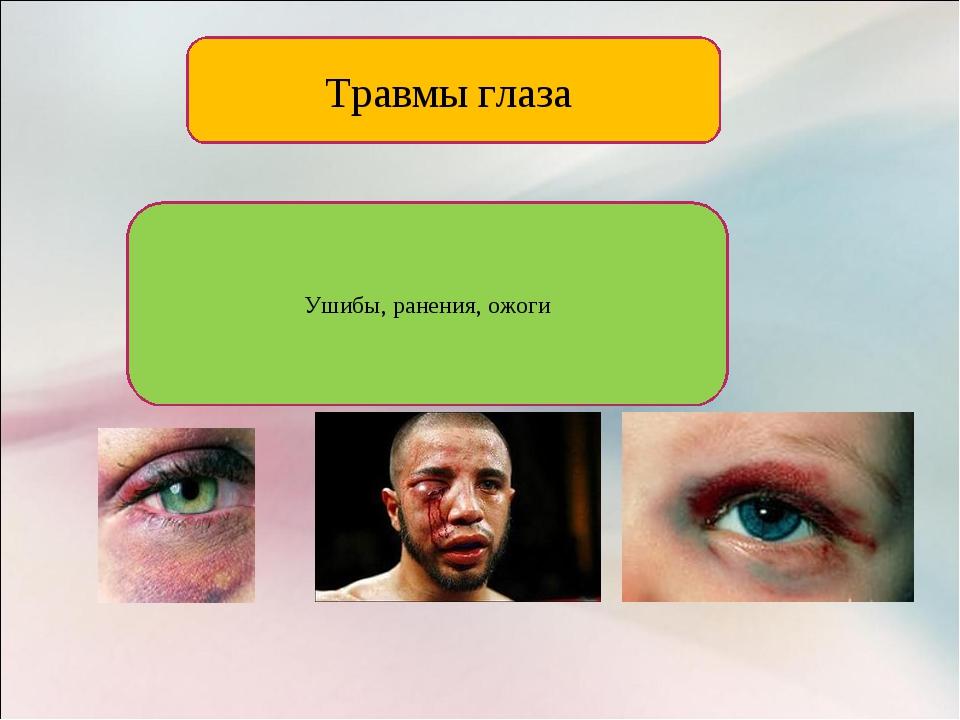Травмы глаза Ушибы, ранения, ожоги