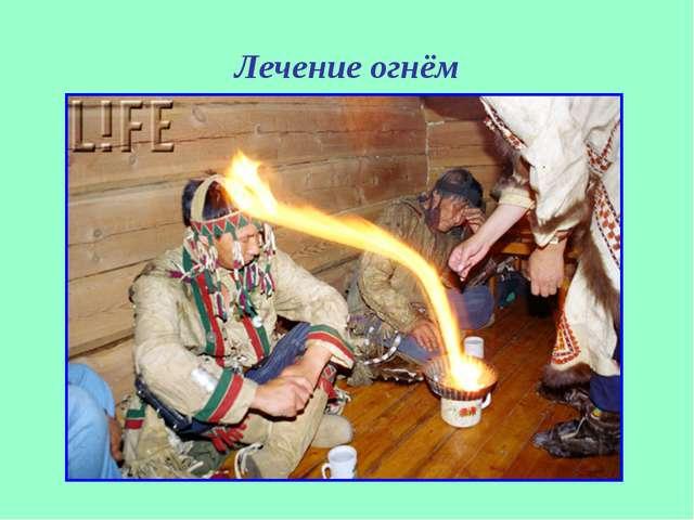 Лечение огнём