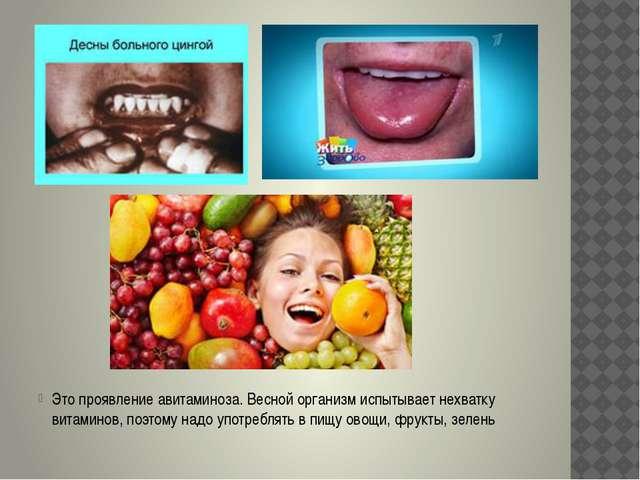 Это проявление авитаминоза. Весной организм испытывает нехватку витаминов, п...
