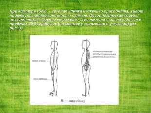 При осмотре сбоку – грудная клетка несколько приподнята, живот подтянут, нижн