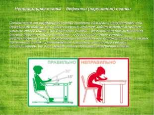 Неправильная осанка – дефекты (нарушения) осанки. Отклонения от нормальной ос