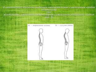 В сагиттальной плоскости выделяют нарушения осанки с увеличением изгибов позв