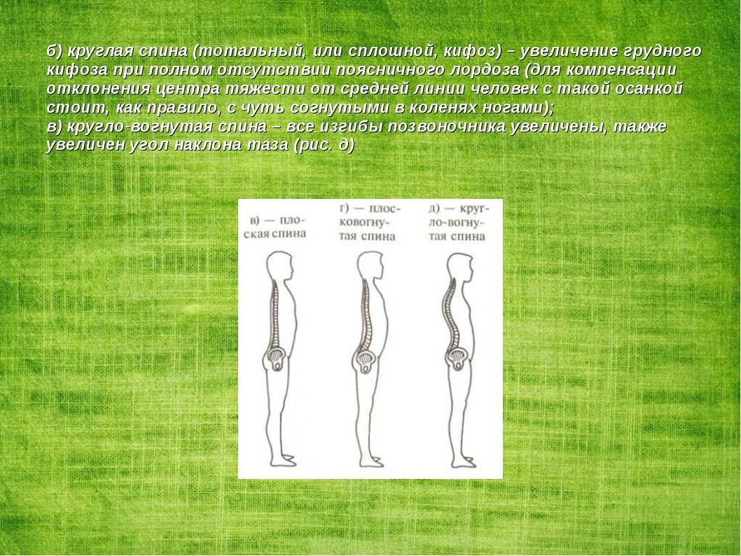 б) круглая спина (тотальный, или сплошной, кифоз) – увеличение грудного кифоз...