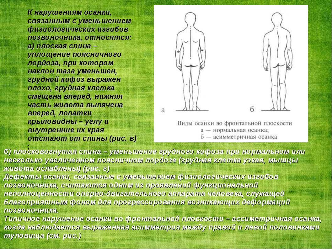 К нарушениям осанки, связанным с уменьшением физиологических изгибов позвоноч...