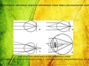 Рефракция – преломляющие свойства нормального глаза. Отклонение от обычной ре