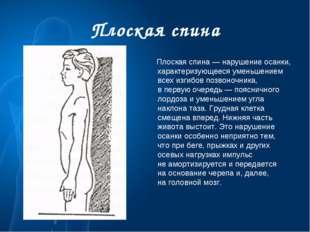 Плоская спина Плоская спина— нарушение осанки, характеризующееся уменьшением