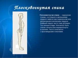 Плосковогнутая спина Плосковогнутая спина— нарушение осанки, состоящее вуме