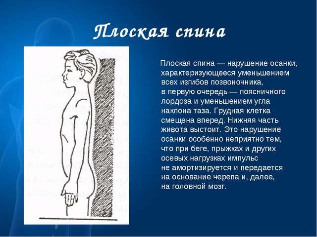 Плоская спина Плоская спина— нарушение осанки, характеризующееся уменьшением...