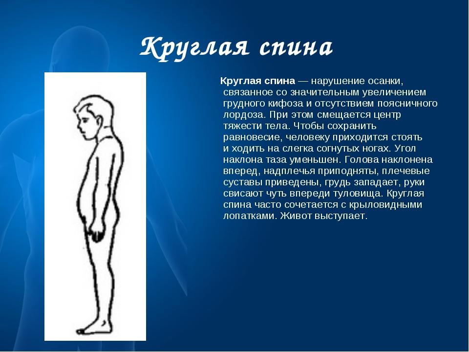 Круглая спина Круглая спина— нарушение осанки, связанное созначительным уве...