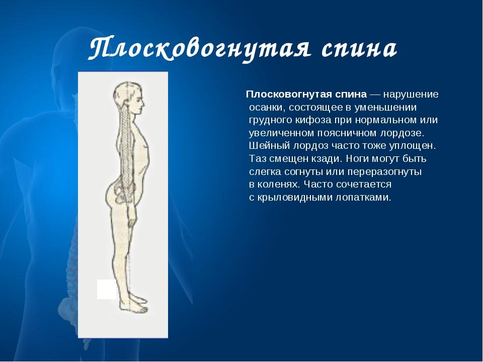 Плосковогнутая спина Плосковогнутая спина— нарушение осанки, состоящее вуме...