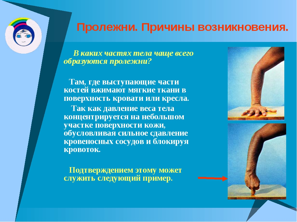 Пролежни. Причины возникновения. В каких частях тела чаще всего образуются пр...