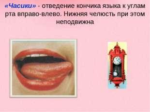 «Часики» - отведение кончика языка к углам рта вправо-влево. Нижняя челюсть п